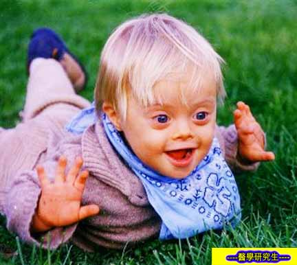 唐氏綜合症( Down Syndrome )又稱蒙古症