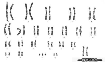 染色體三體變異(Trisomy 21)