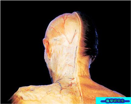 屍體解剖-------頭部
