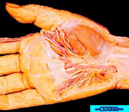屍體解剖-------手部