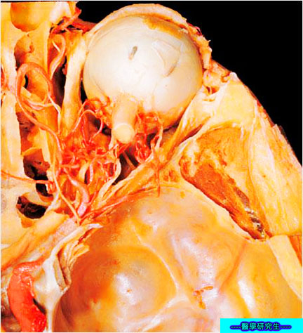 屍體解剖-------內臟動脈