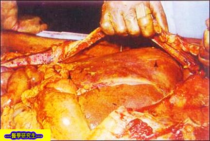 肝臟膿瘡嚴重者因血中毒而死亡